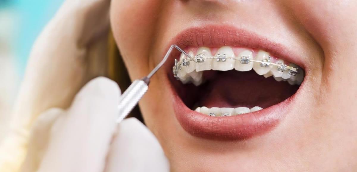 Sabit Ortodontik Apareyler