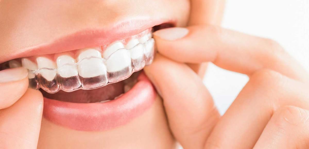 Yetişkinlerde Ortodonti Tedavisi Bölüm 2