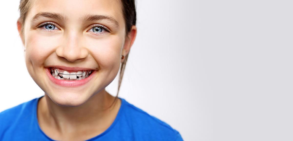 Diş Çapraşıklığında Tedavi Seçenekleri