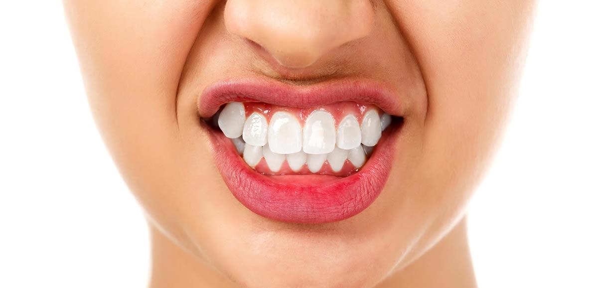 Diş Sıkma ve Gıcırdatma Tedavisi