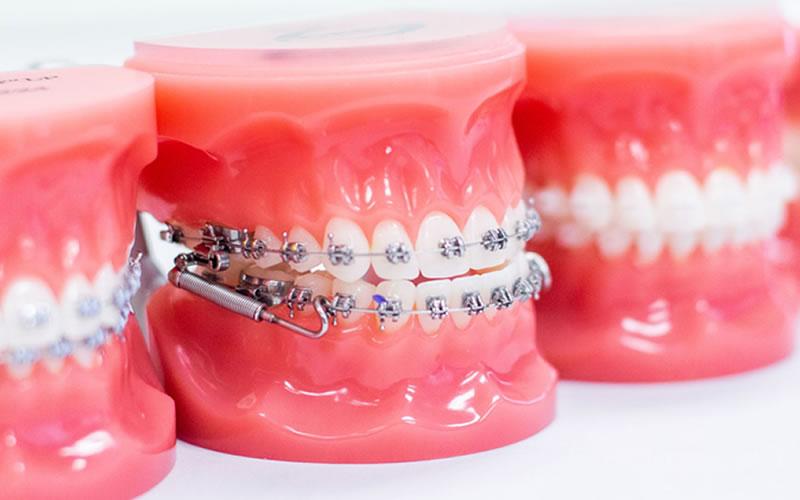 Geleneksel Diş Teli Tedavileri