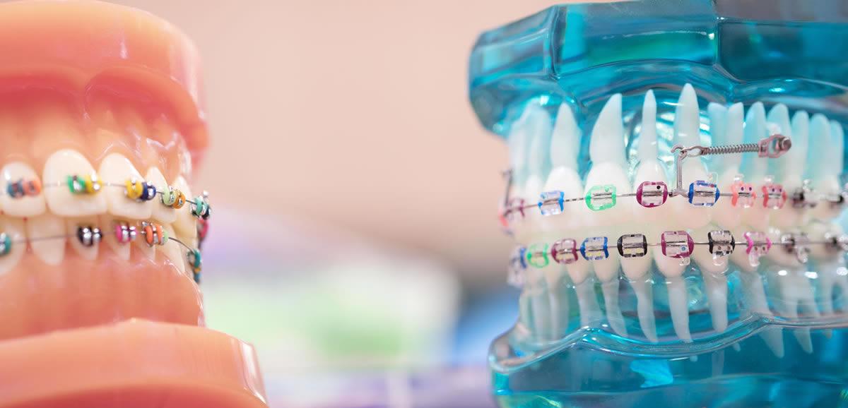Hızlı Ortodontik Braket Sistemleri (Kapaklı Braketler)