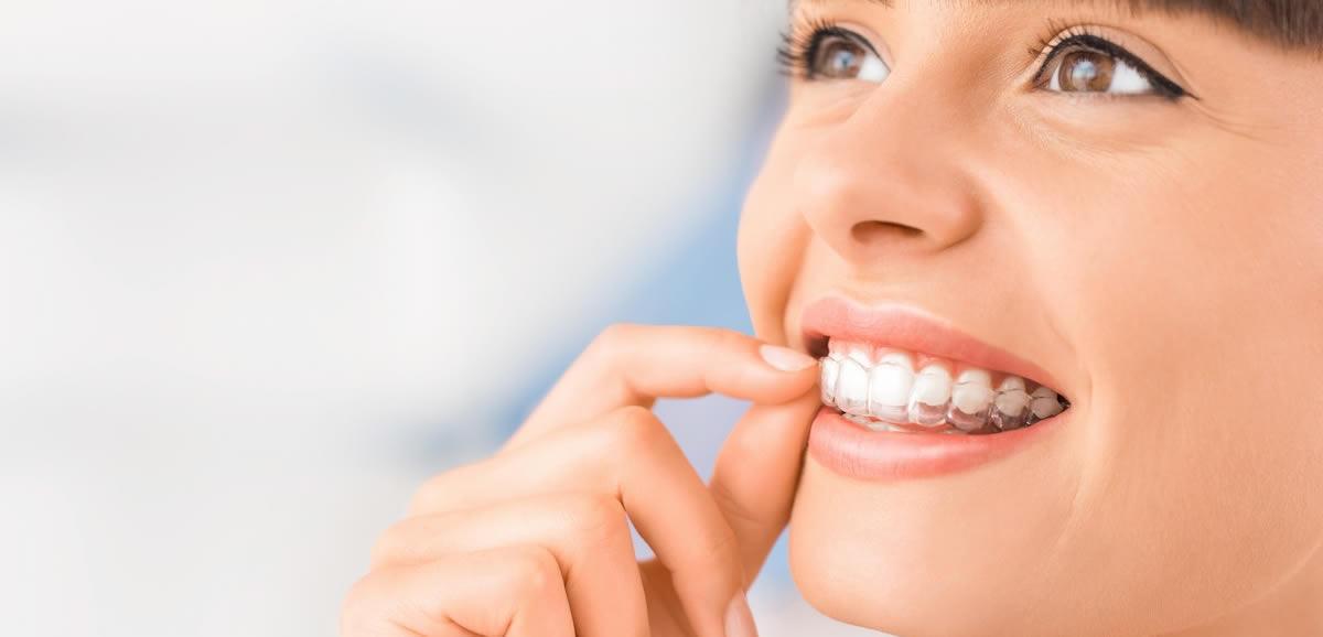 invisalign Şeffaf Plak Ortodontik Tedaviler