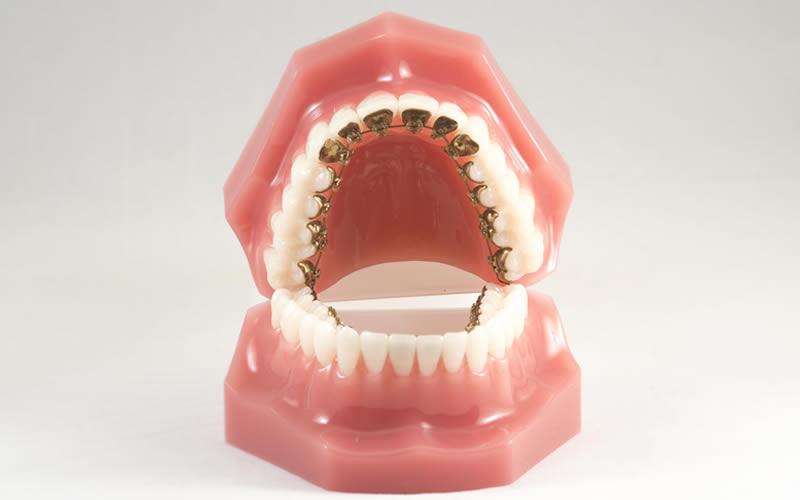 İncognito (Görünmez Diş Teli)