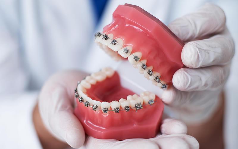 Metal Diş Teli Tedavisi
