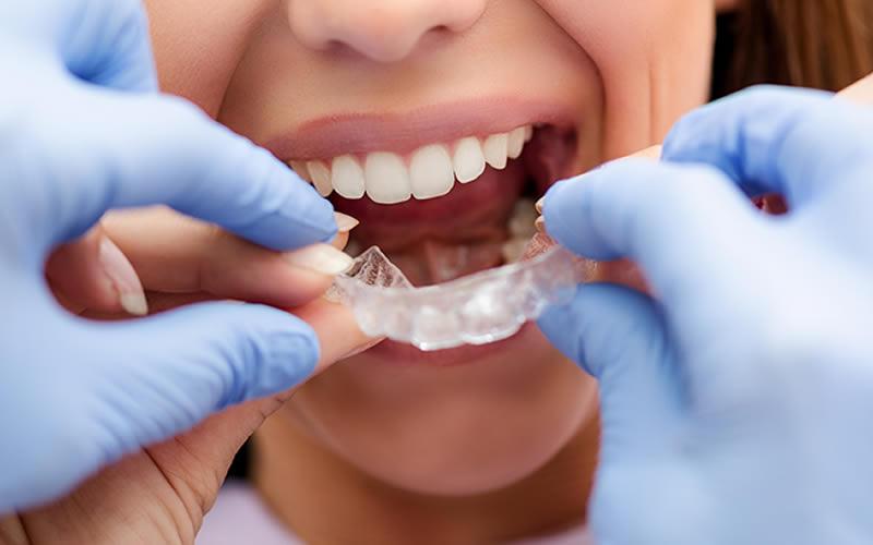 Yetişkin Ortodonti Tedavisi
