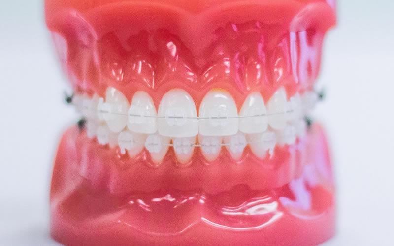 Porselen Diş Teli (Porselen Braket)