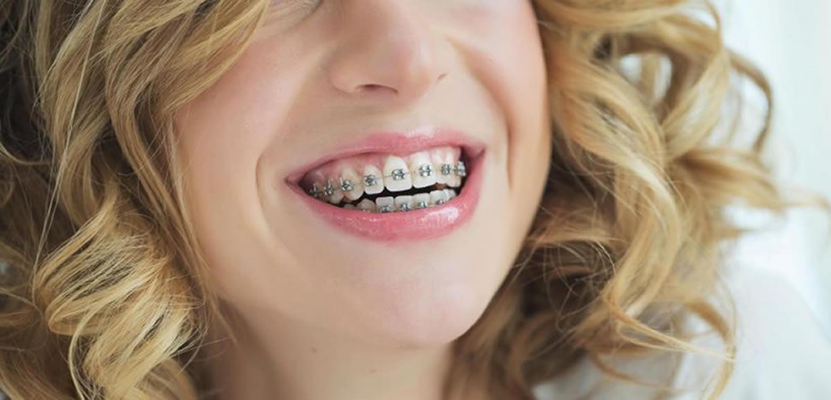 Ortodontide Mini Vida Kullanımı