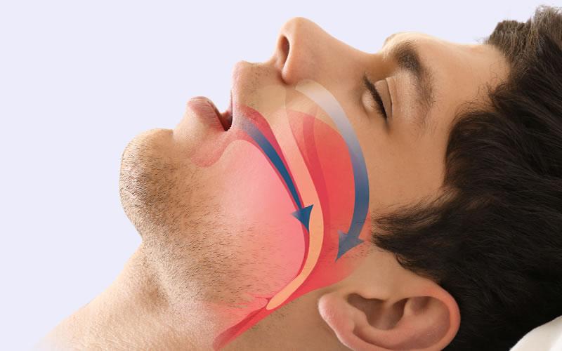 Horlama Tedavisi Uyku Apnesi