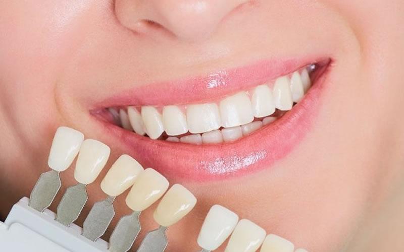 Porselen Lamina Diş Nedir