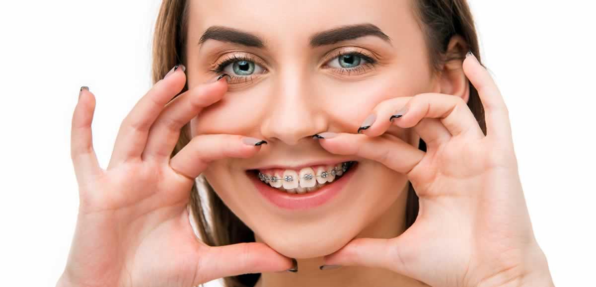 Ortodontik Tedavi Süresi Ne Kadar?